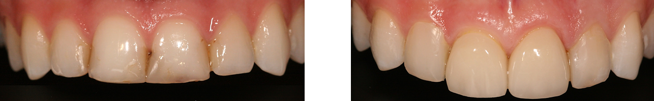 smile design before and after veneers Aesthetic Dental Zone