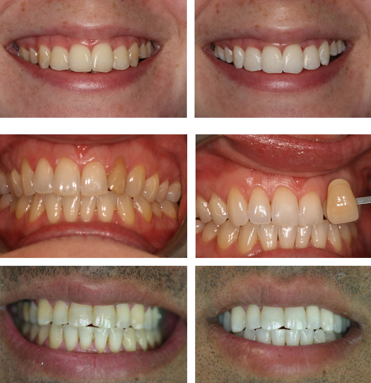 Home whitening dulwich dental alternatively you can email us at infodulwichdentists fandeluxe Images