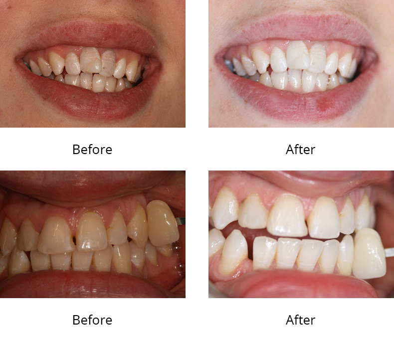 toothwhitening Aesthetic Dental Zone